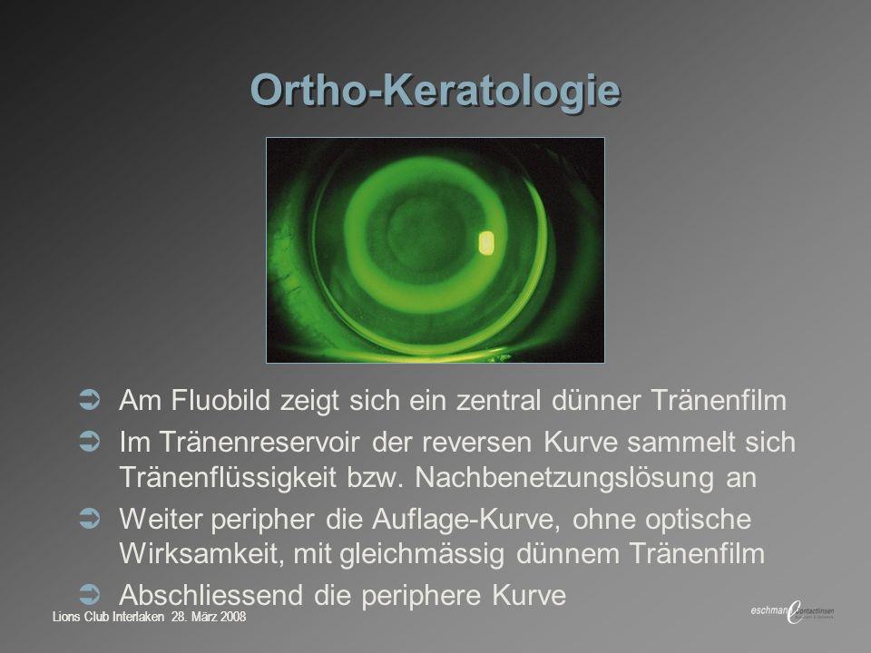 Ortho-Keratologie Am Fluobild zeigt sich ein zentral dünner Tränenfilm