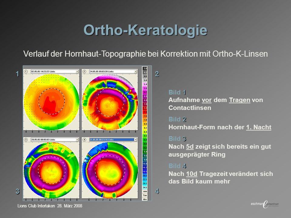 Verlauf der Hornhaut-Topographie bei Korrektion mit Ortho-K-Linsen