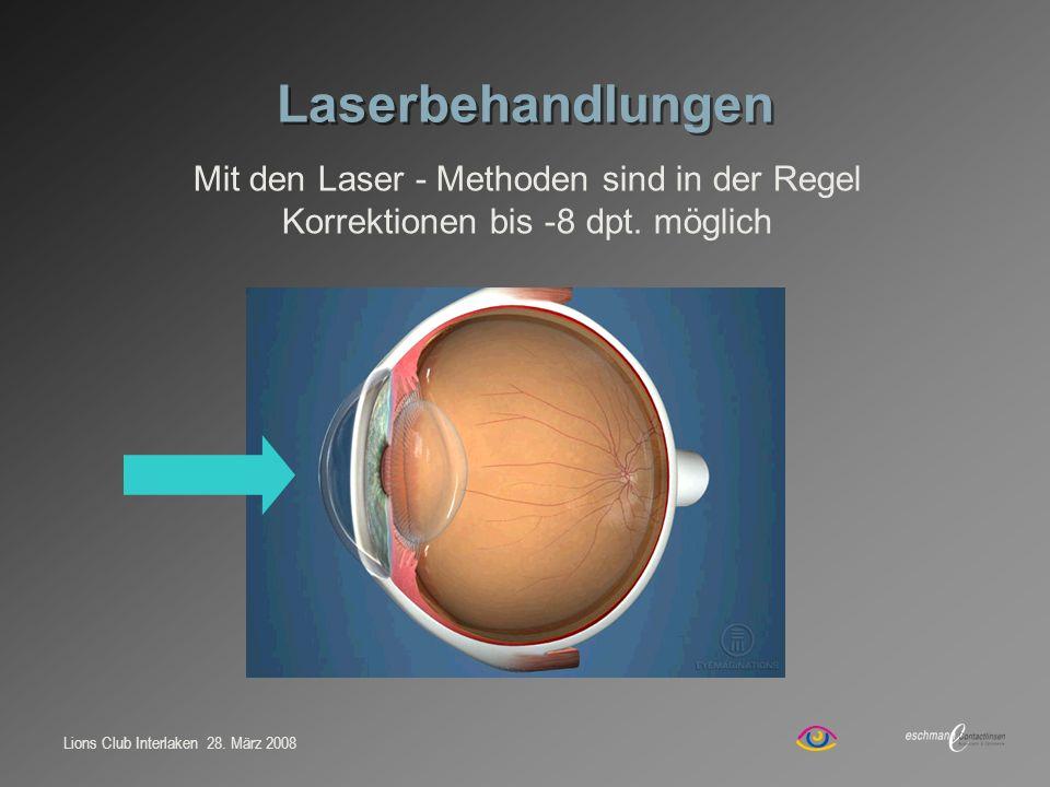 Laserbehandlungen Mit den Laser - Methoden sind in der Regel Korrektionen bis -8 dpt. möglich