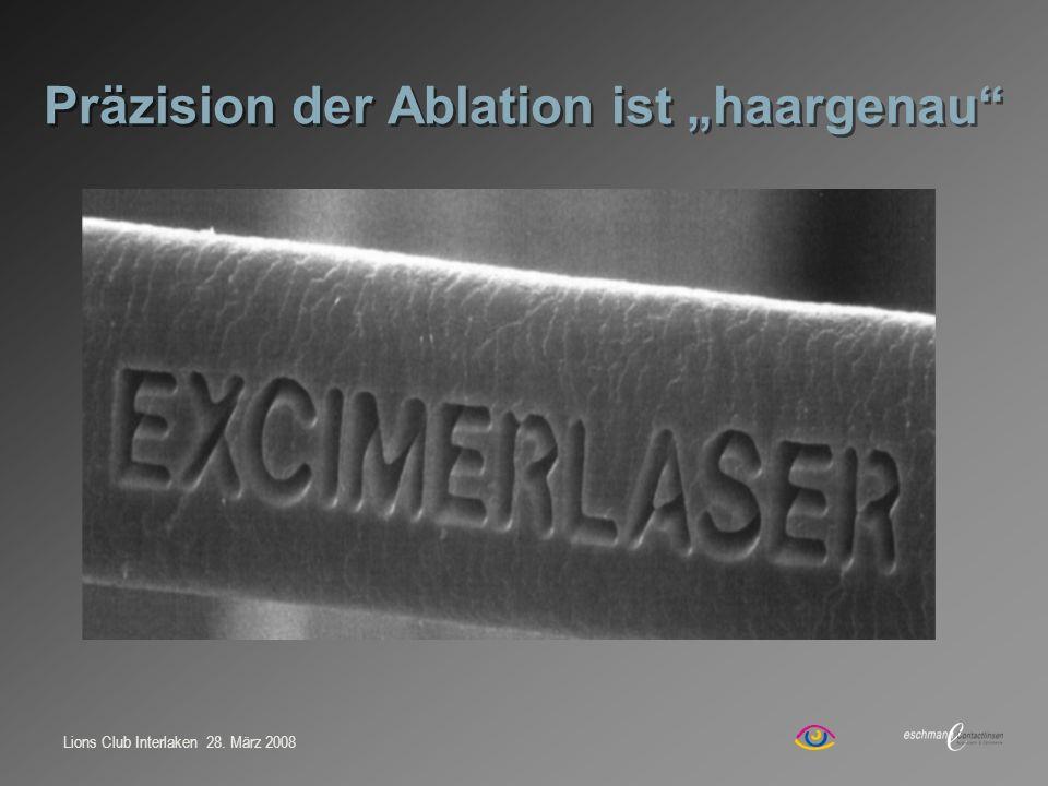 """Präzision der Ablation ist """"haargenau"""