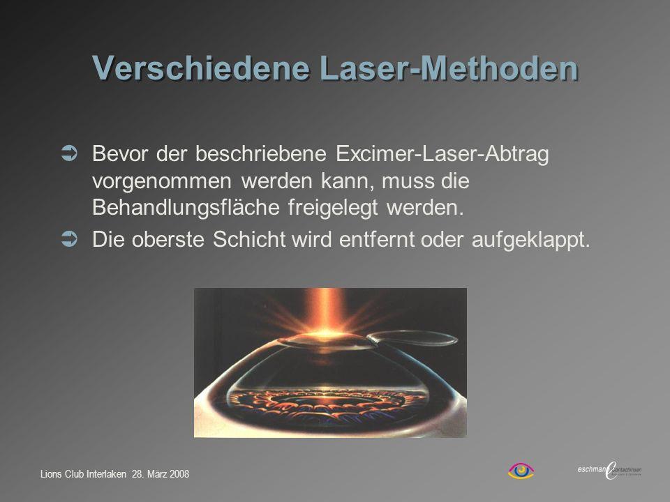 Verschiedene Laser-Methoden