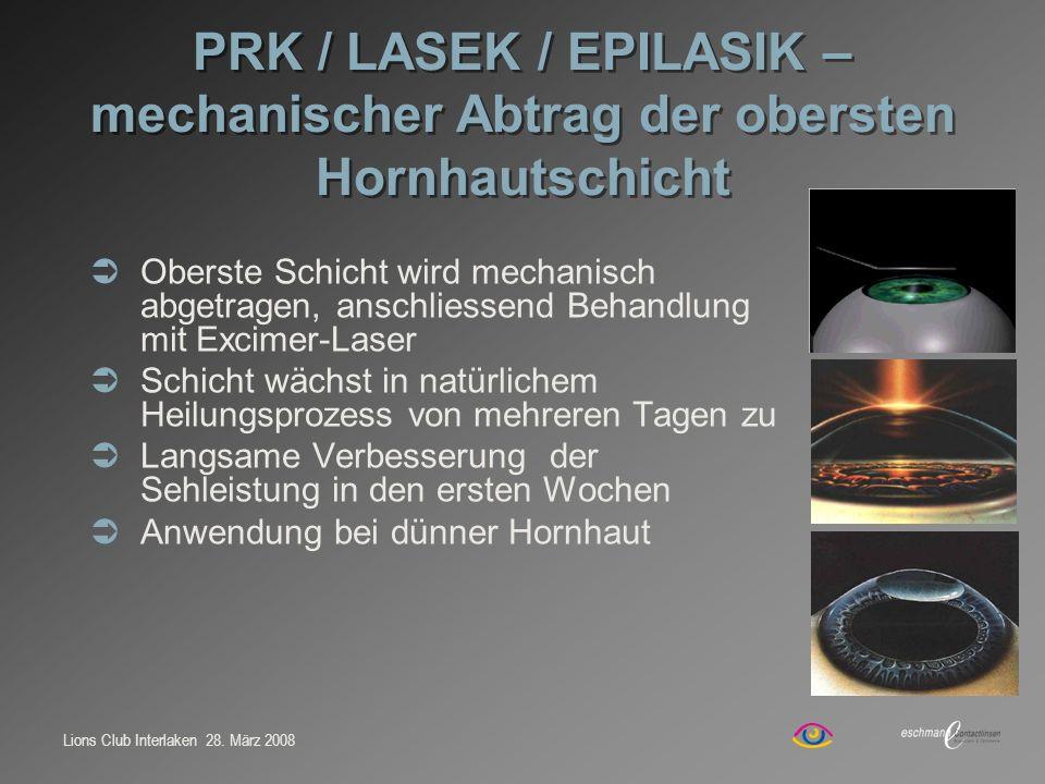 PRK / LASEK / EPILASIK – mechanischer Abtrag der obersten Hornhautschicht