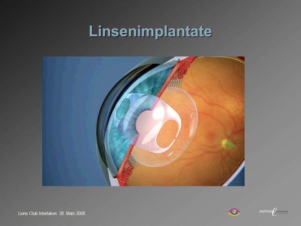 Linsenimplantate Referent: