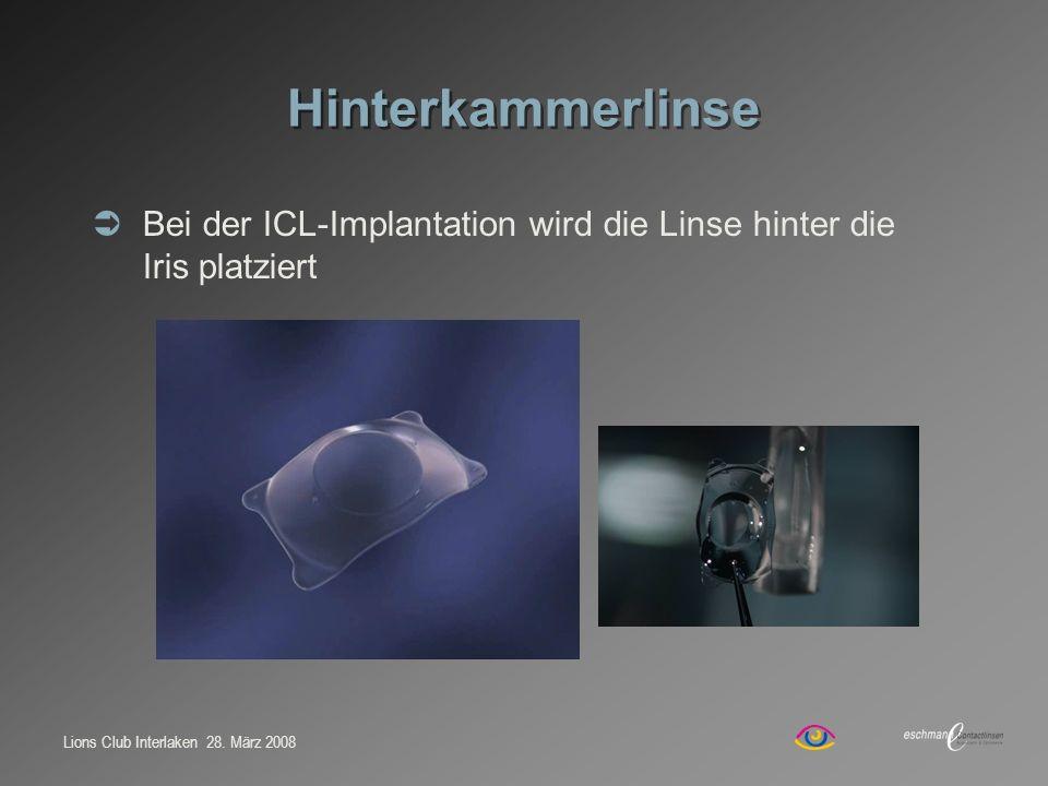 Hinterkammerlinse Bei der ICL-Implantation wird die Linse hinter die Iris platziert