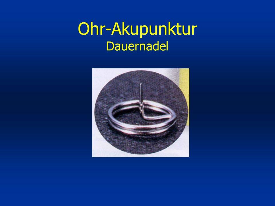 Ohr-Akupunktur Dauernadel