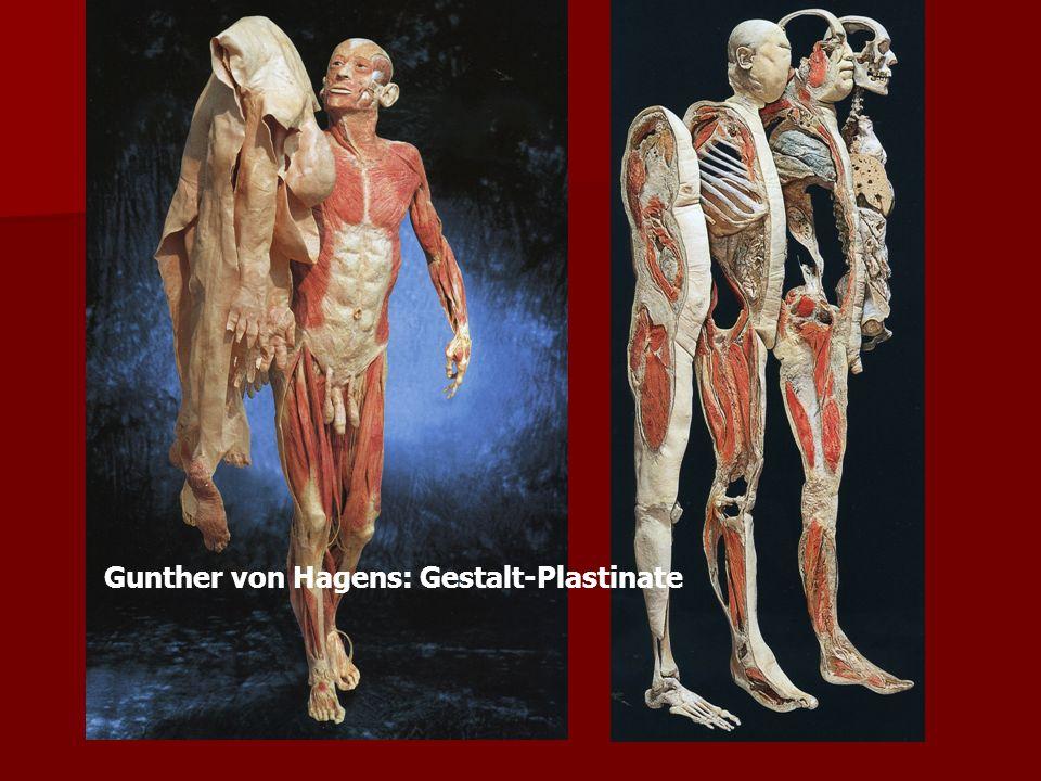 Gunther von Hagens: Gestalt-Plastinate