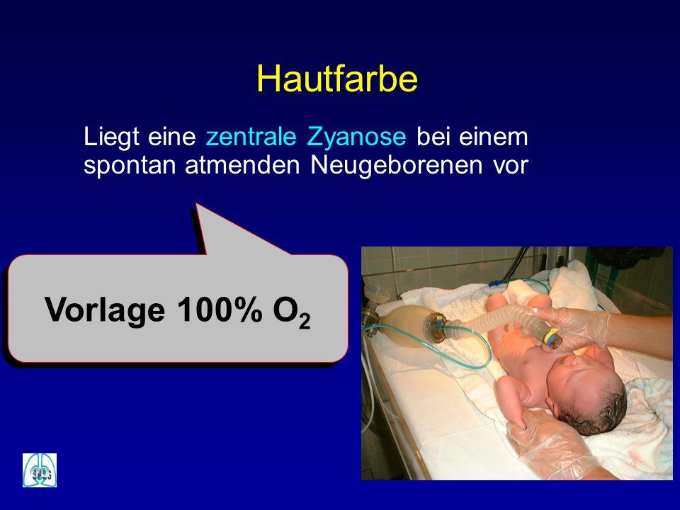 Hautfarbe Liegt eine zentrale Zyanose bei einem spontan atmenden Neugeborenen vor Vorlage 100% O2