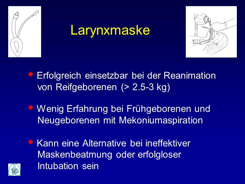Larynxmaske Erfolgreich einsetzbar bei der Reanimation