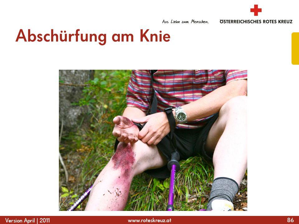 Abschürfung am Knie