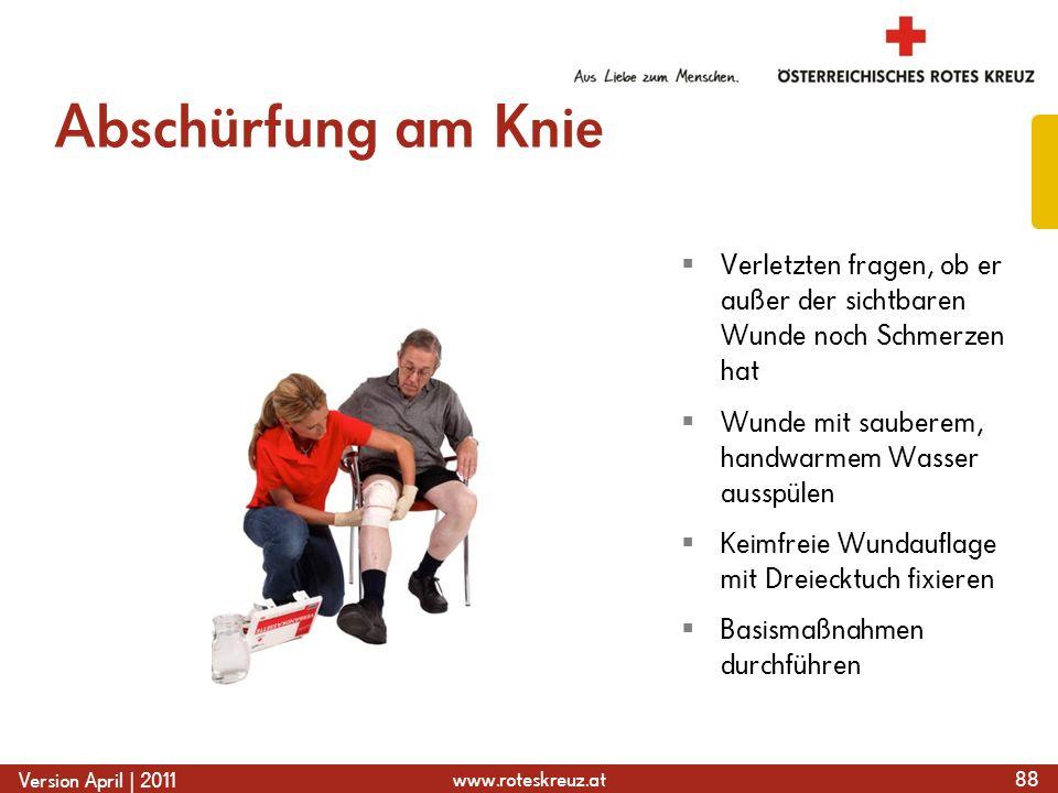 Abschürfung am KnieVerletzten fragen, ob er außer der sichtbaren Wunde noch Schmerzen hat. Wunde mit sauberem, handwarmem Wasser ausspülen.