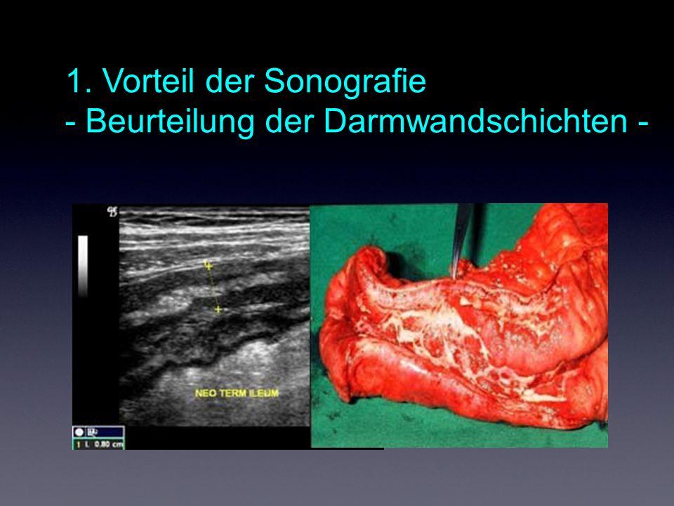 1. Vorteil der Sonografie