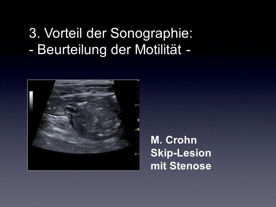3. Vorteil der Sonographie: - Beurteilung der Motilität -