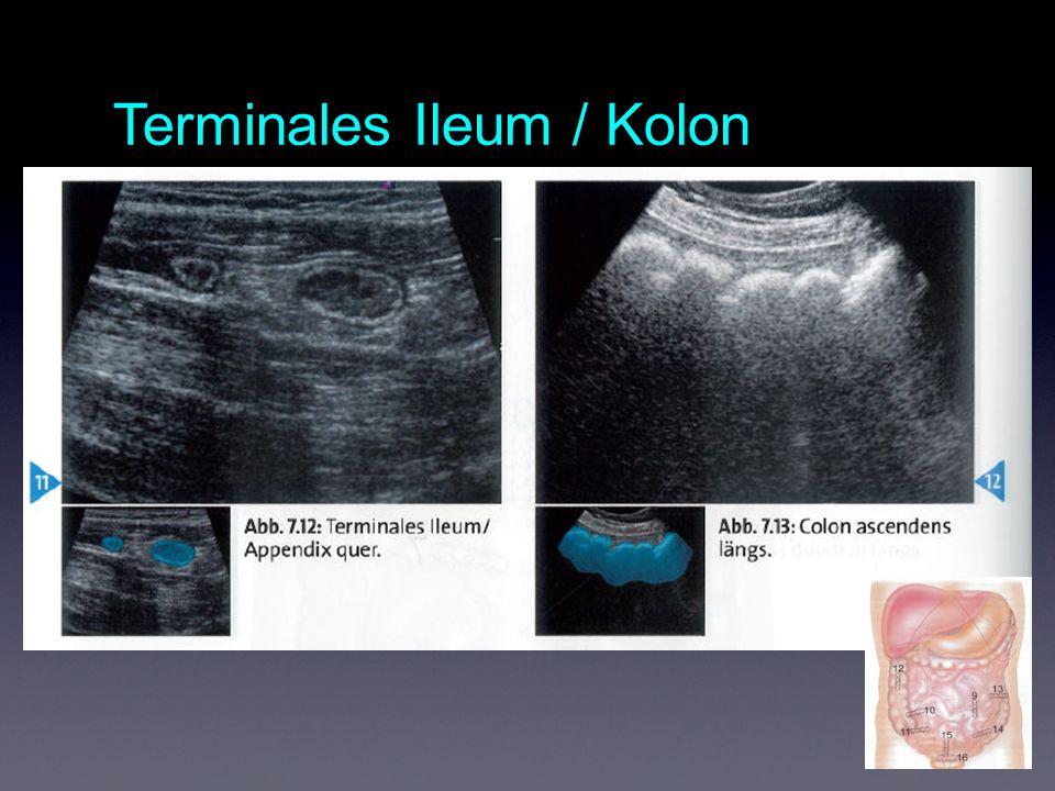 Terminales Ileum / Kolon
