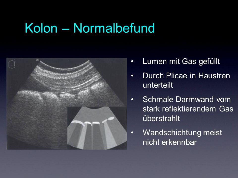 Kolon – Normalbefund Lumen mit Gas gefüllt