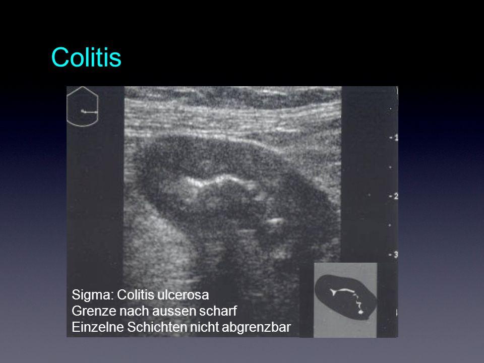 Colitis Sigma: Colitis ulcerosa Grenze nach aussen scharf