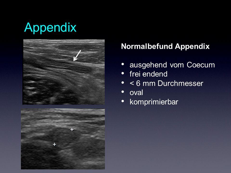 Appendix Normalbefund Appendix ausgehend vom Coecum frei endend