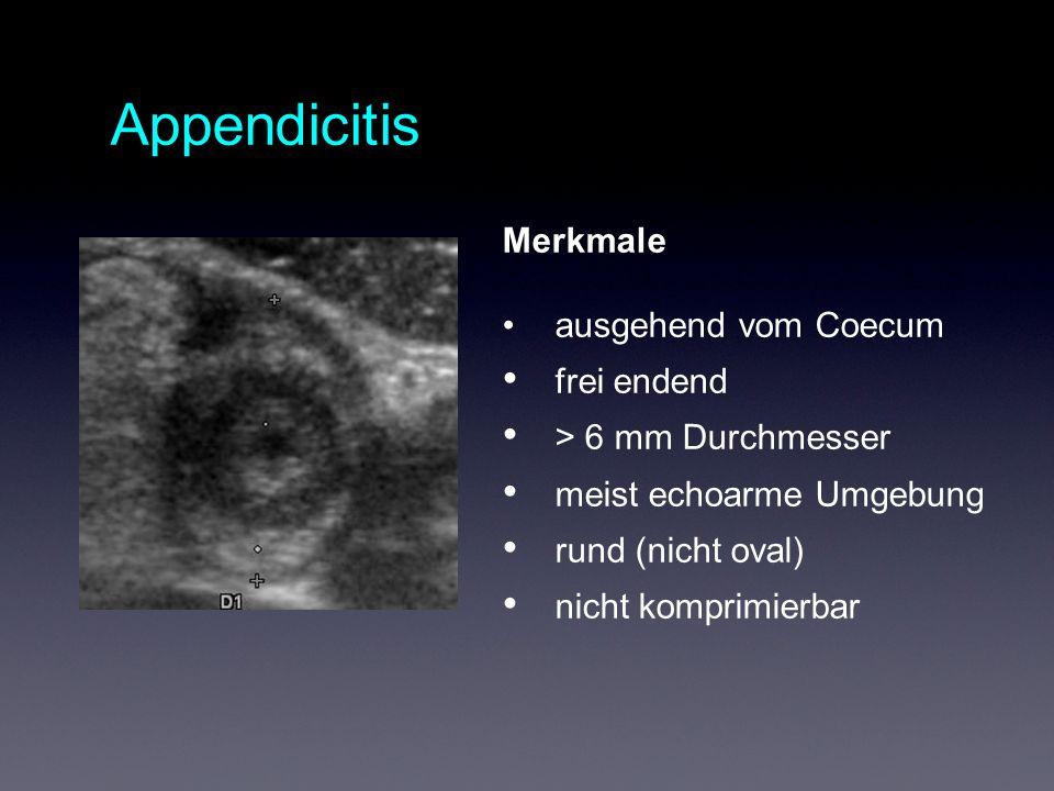 Appendicitis Merkmale ausgehend vom Coecum frei endend