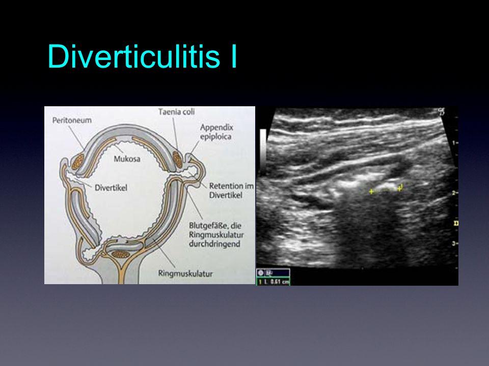 Diverticulitis I