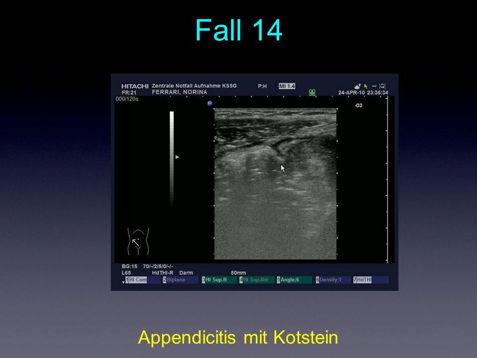 Appendicitis mit Kotstein