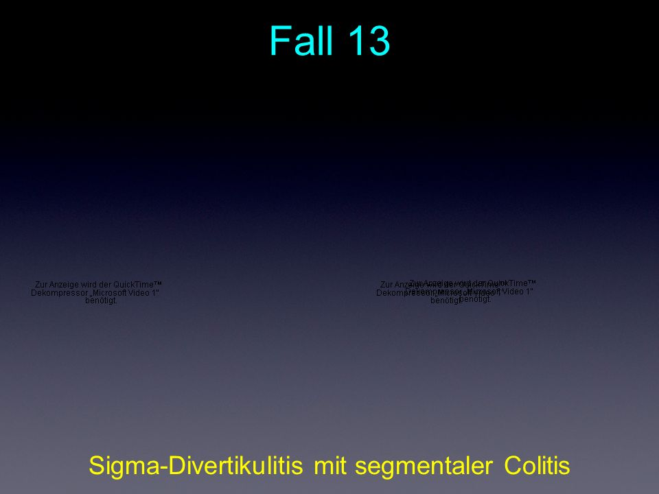 Sigma-Divertikulitis mit segmentaler Colitis