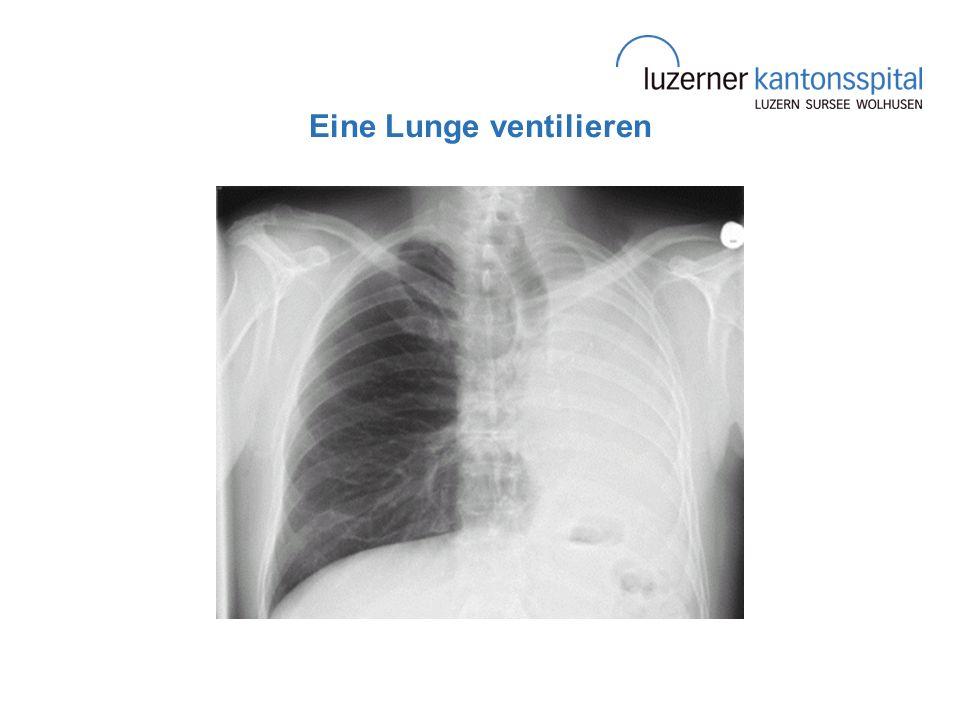 Eine Lunge ventilieren