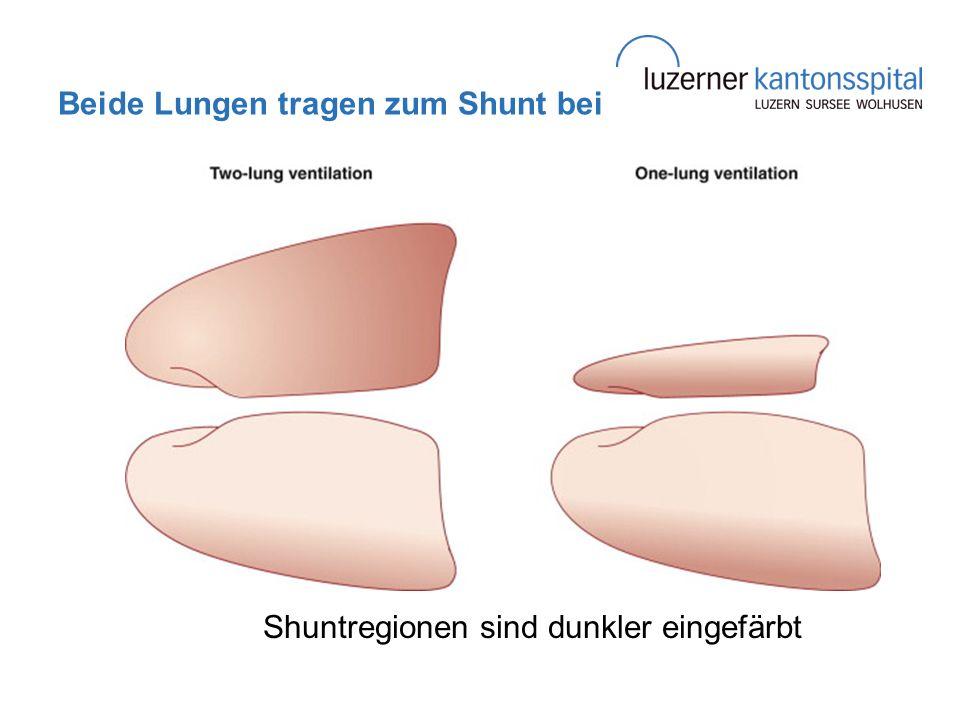 Beide Lungen tragen zum Shunt bei