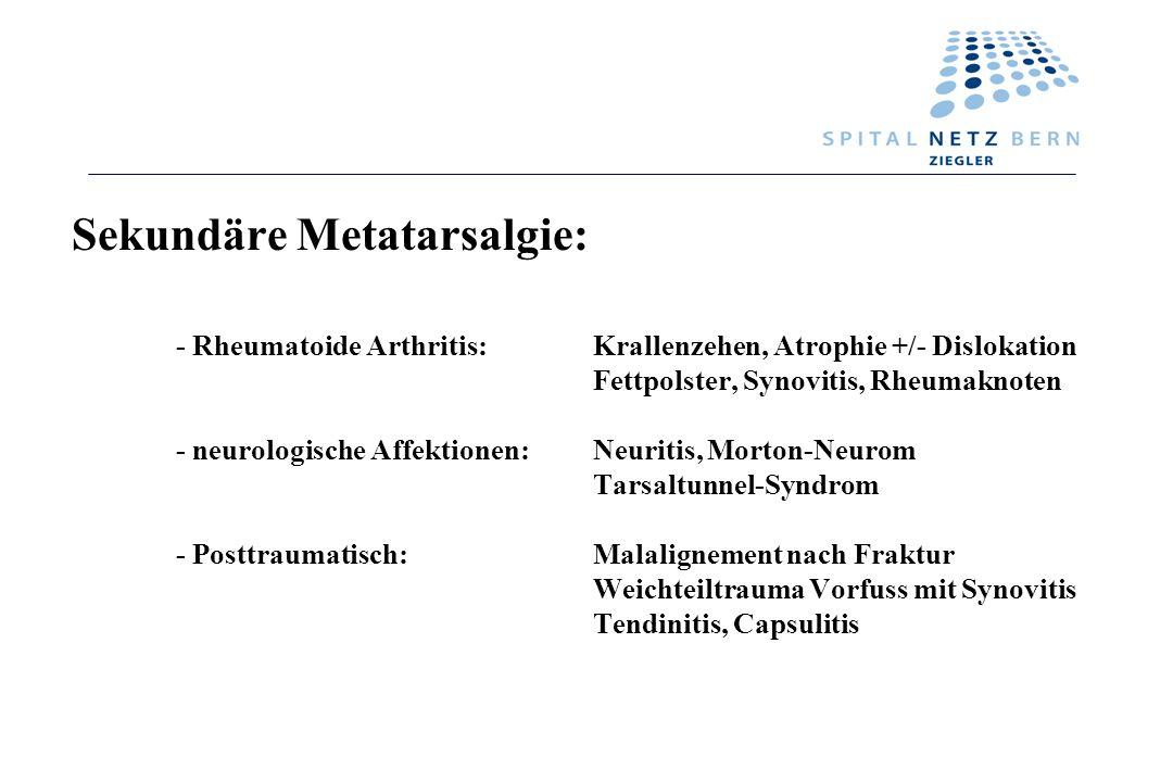 Sekundäre Metatarsalgie: