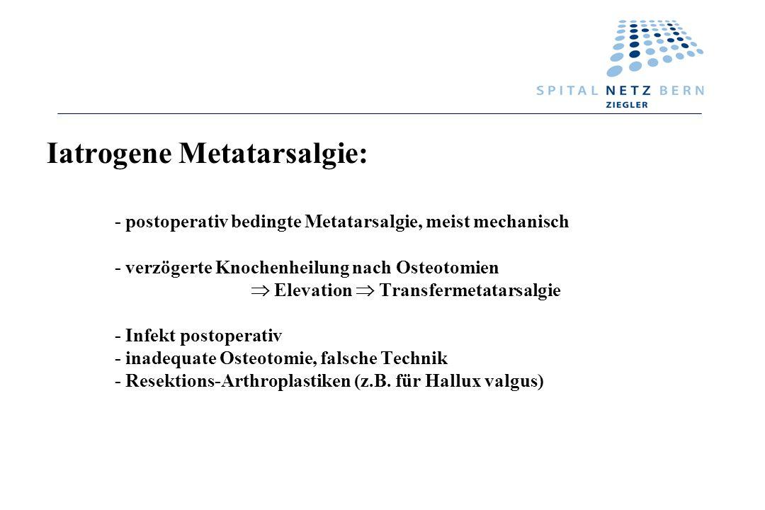 Iatrogene Metatarsalgie: