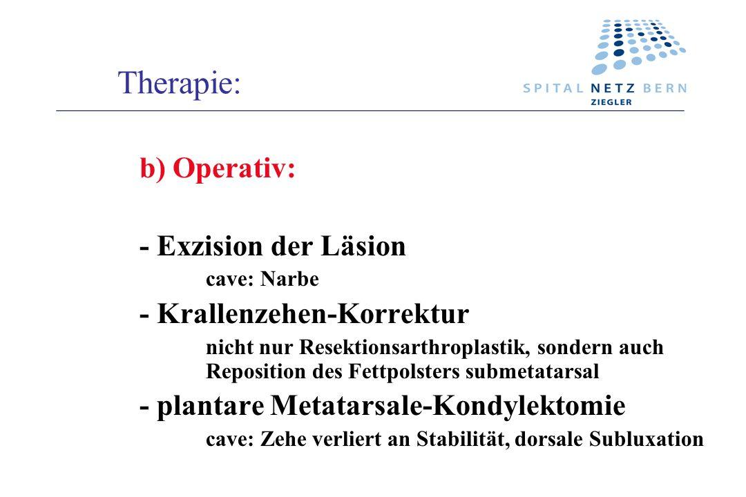 Therapie: Operativ: - Exzision der Läsion - Krallenzehen-Korrektur
