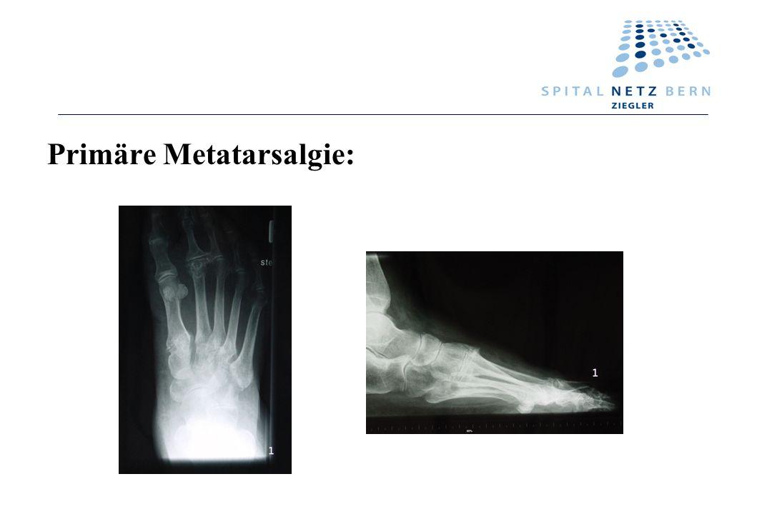 Primäre Metatarsalgie: