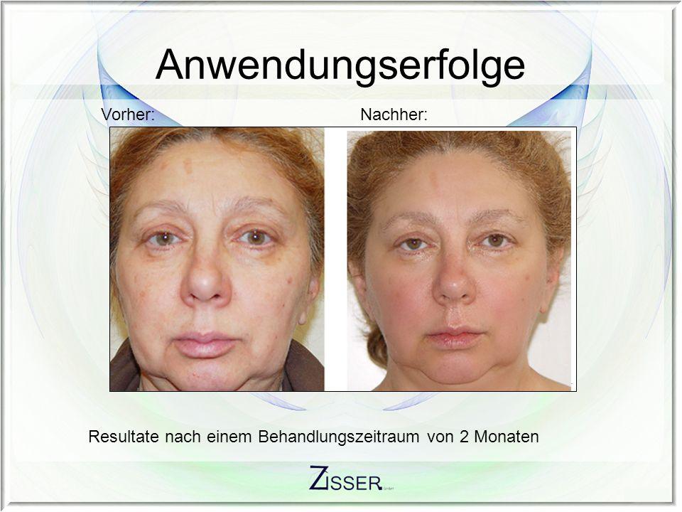 Resultate nach einem Behandlungszeitraum von 2 Monaten