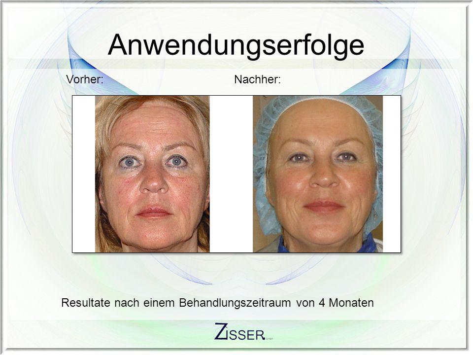 Resultate nach einem Behandlungszeitraum von 4 Monaten