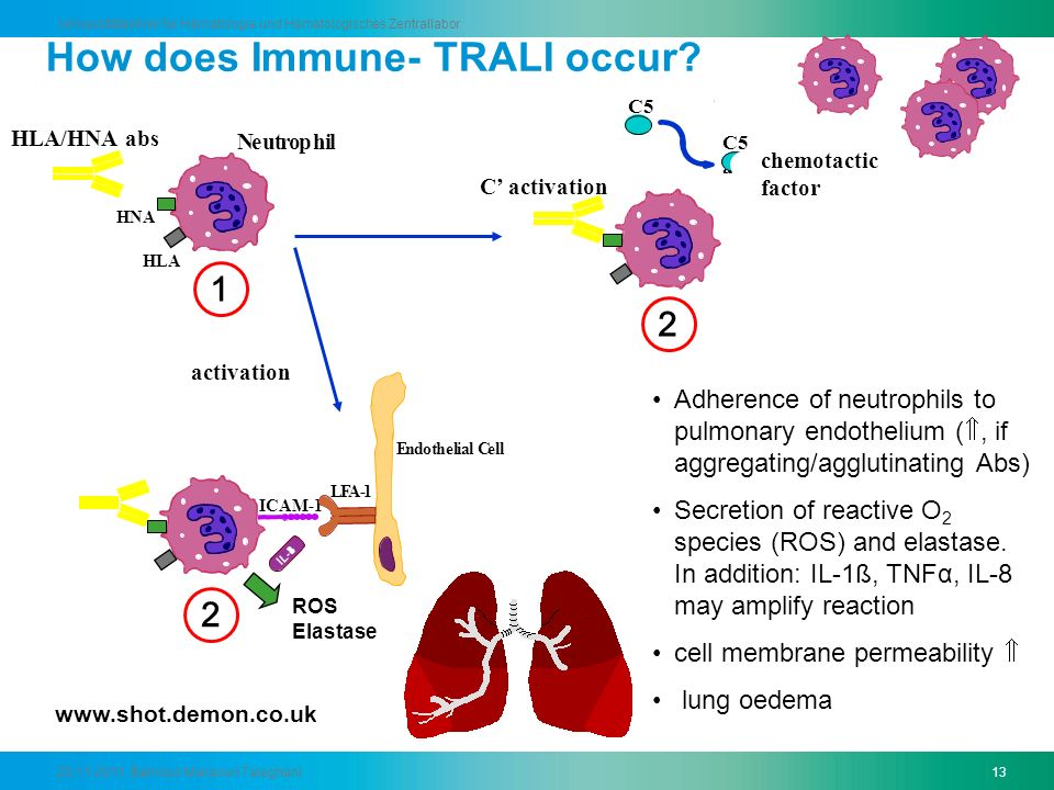 How does Immune- TRALI occur