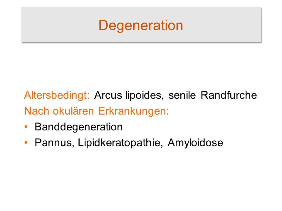 Degeneration Altersbedingt: Arcus lipoides, senile Randfurche