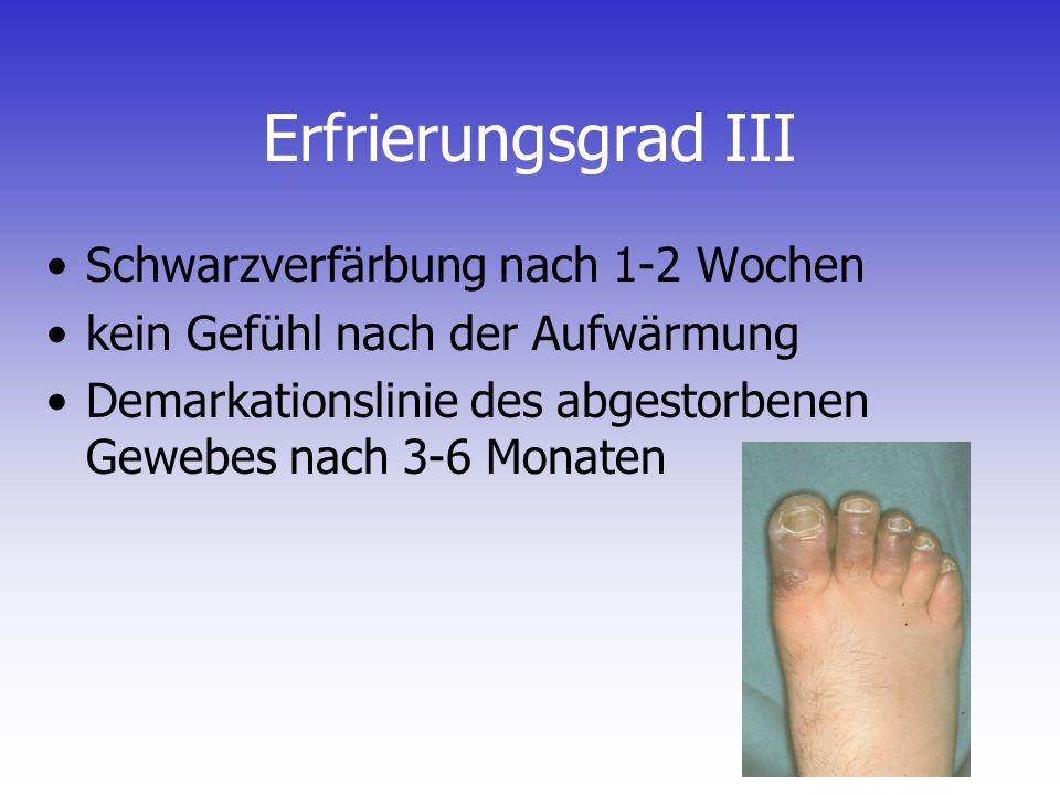 Erfrierungsgrad III Schwarzverfärbung nach 1-2 Wochen