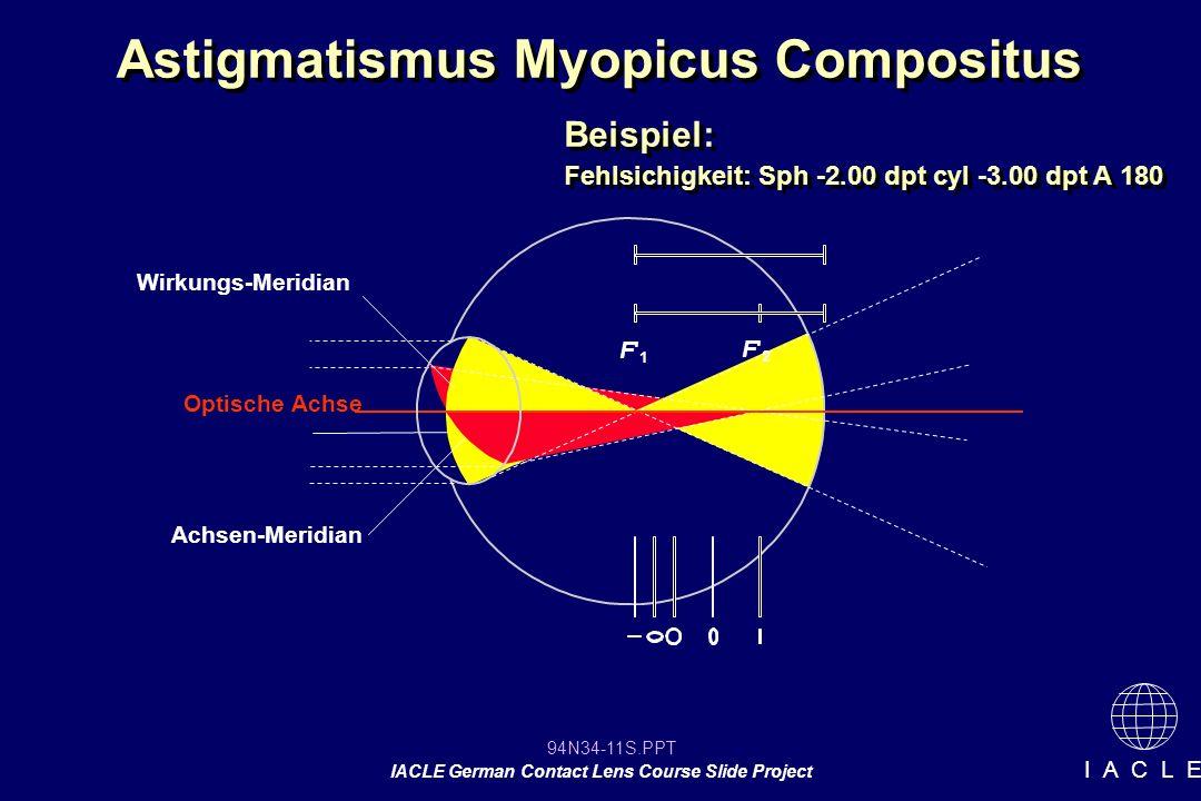 Astigmatismus Myopicus Compositus