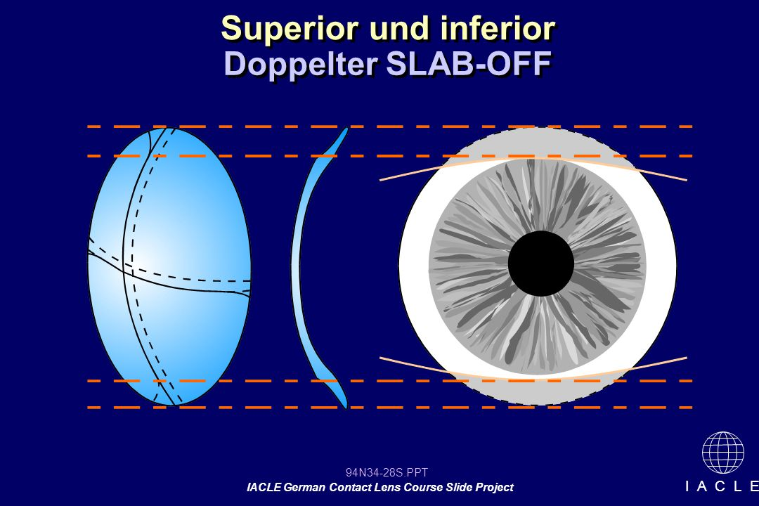Superior und inferior Doppelter SLAB-OFF 12 12