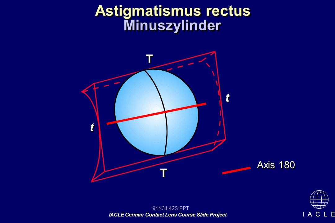 Astigmatismus rectus Minuszylinder T t t Axis 180 T 12 12