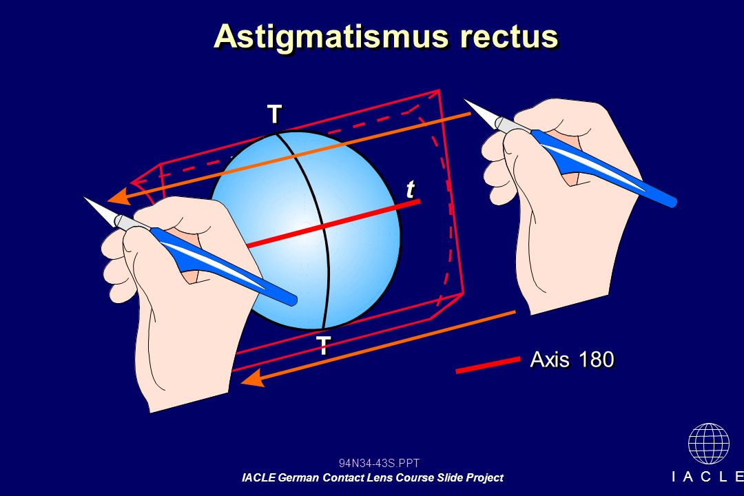 Astigmatismus rectus T t T Axis 180 12 12