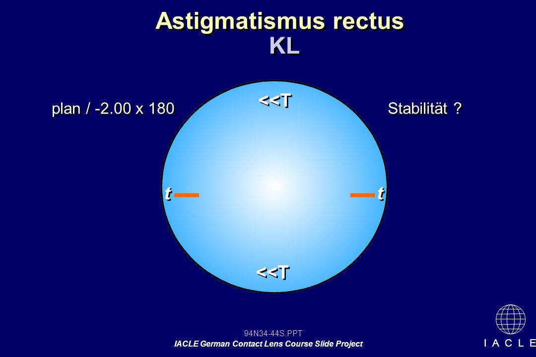 Astigmatismus rectus KL <<T t t <<T plan / -2.00 x 180