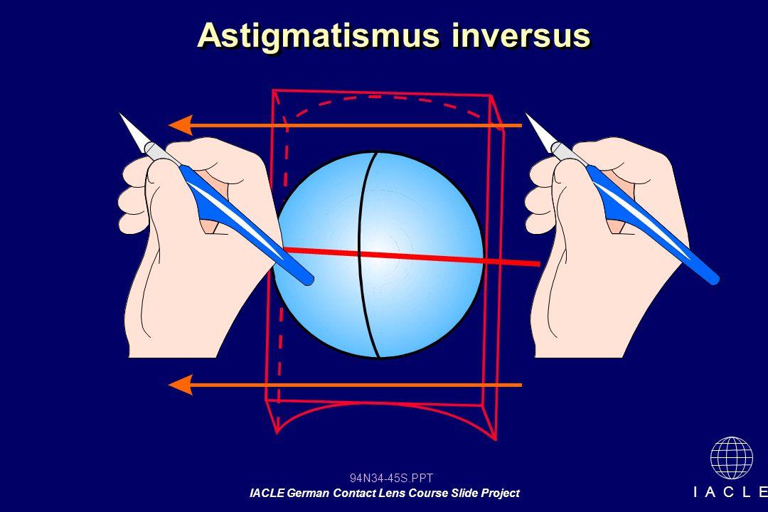 Astigmatismus inversus