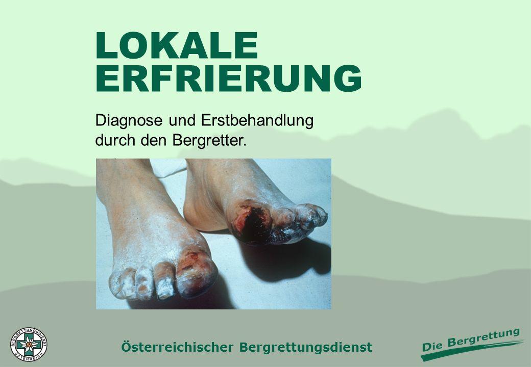 LOKALE ERFRIERUNG Diagnose und Erstbehandlung durch den Bergretter.