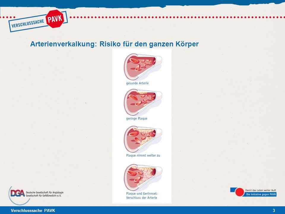 Arterienverkalkung: Risiko für den ganzen Körper
