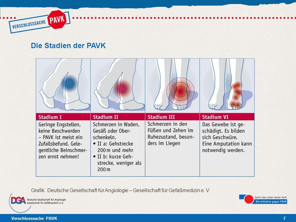 Die Stadien der PAVK Grafik: Deutsche Gesellschaft für Angiologie – Gesellschaft für Gefäßmedizin e.