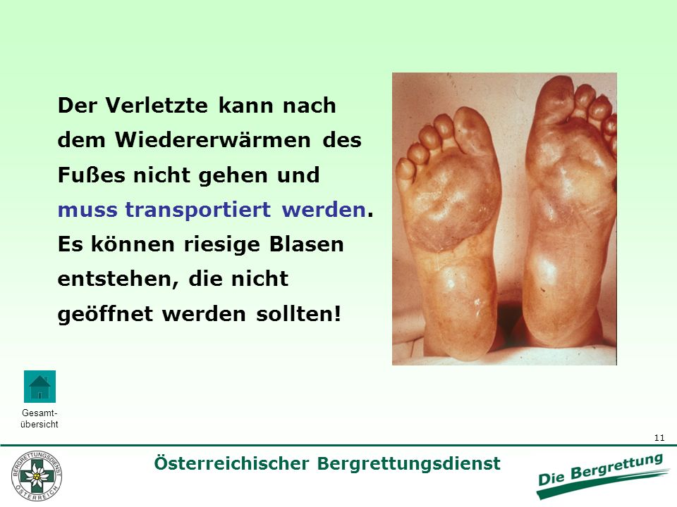 Der Verletzte kann nach dem Wiedererwärmen des Fußes nicht gehen und muss transportiert werden.