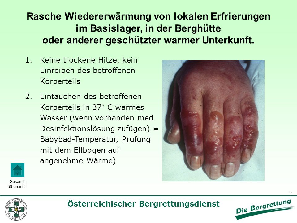 Rasche Wiedererwärmung von lokalen Erfrierungen im Basislager, in der Berghütte oder anderer geschützter warmer Unterkunft.