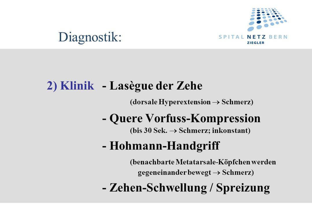 Diagnostik: 2) Klinik - Lasègue der Zehe (dorsale Hyperextension  Schmerz) - Quere Vorfuss-Kompression (bis 30 Sek.  Schmerz; inkonstant)