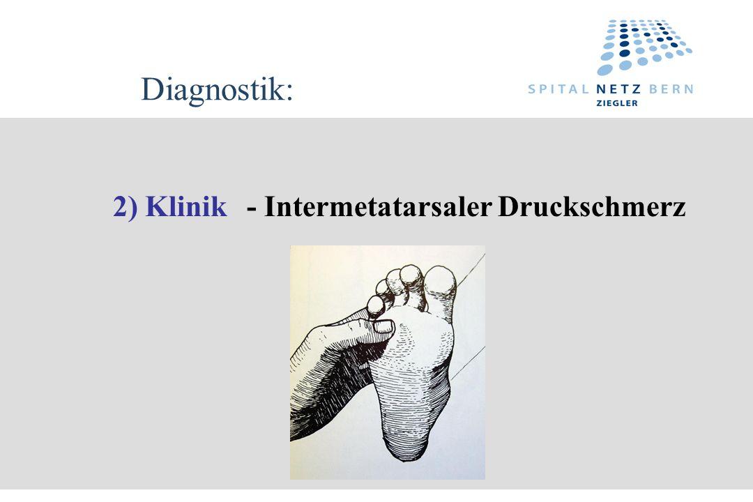 Diagnostik: 2) Klinik - Intermetatarsaler Druckschmerz