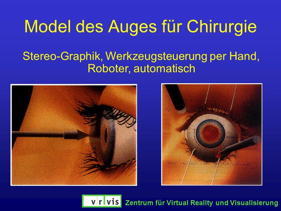 Model des Auges für Chirurgie