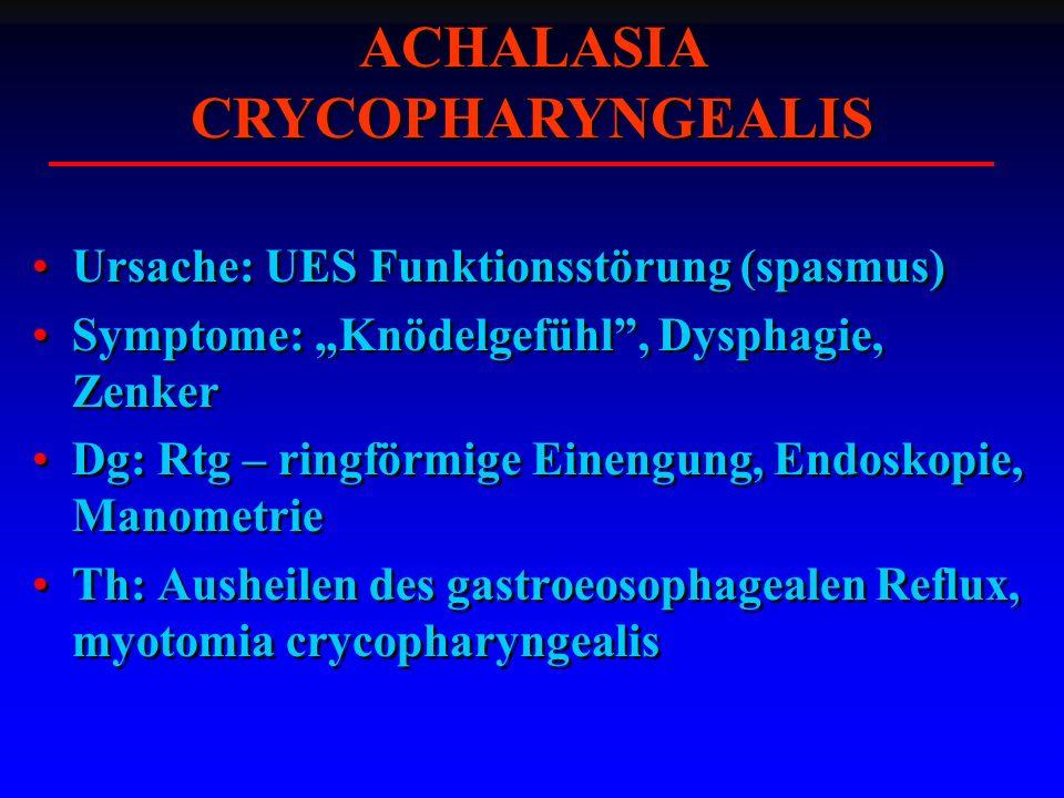 ACHALASIA CRYCOPHARYNGEALIS